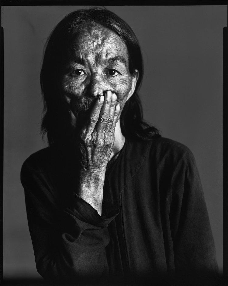 Napalm+Victim+#3,+Saigon,+South+Vietnam,+April+29,+1971,+Murals+and+Portraits